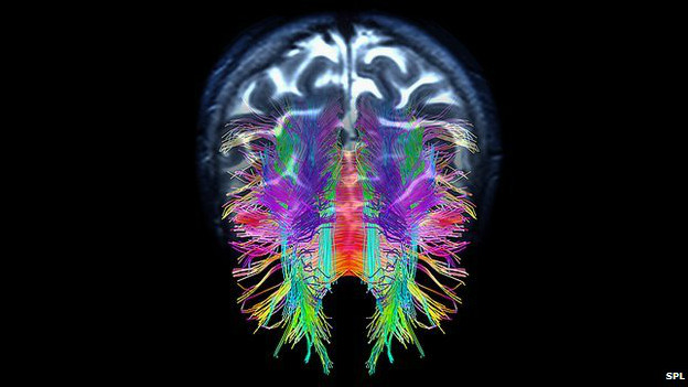 मानव मस्तिष्क की निर्माण प्रक्रिया