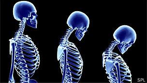 Imagem gerada por computador mostra a progressão da osteoporose em um esqueleto feminino (SPL)