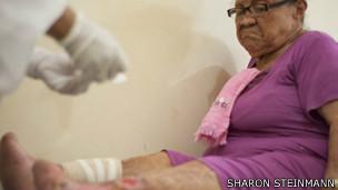 Paciente de hanseníase | Foto: Sharon Steinmann