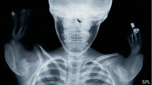 Rayos X de niño con el síndrome de talidomida