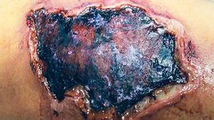 Herida causada por la araña parda reclusa