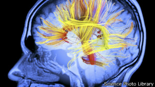 http://wscdn.bbc.co.uk/worldservice/assets/images/2013/08/13/130813111620_brain_2_304x171_sciencephotolibrary.jpg