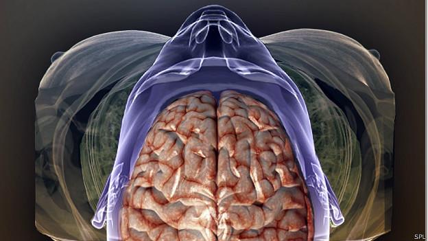 Escáner de cerebro