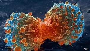 Ilustración del cáncer de pulmón