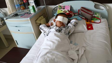 目前男童没有生命危险,但将永久失明(27/08/2013)