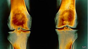 Rodillas con osteoartrosis