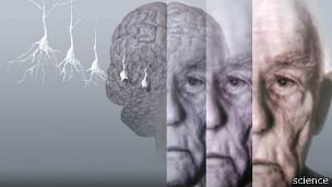 مغز مبتلای به آلزایمر