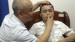 Doctor comprueba la infetada nariz de Xiaolian