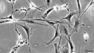 Células cerebrais (fto: Getty Images)