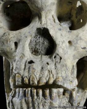 Cráneo 5