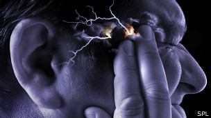 Imagen que representa dolor de cabeza