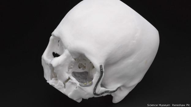 Implantes faciais impressos em 3D (Foto: Science Museum & Renishaw Plc)