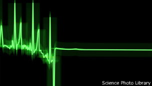 Heartbeat, Science Photo Library