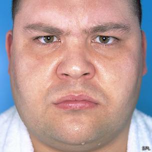 Hombre furioso, sudoroso, pasado de kilos... pero, ¿hipertenso?