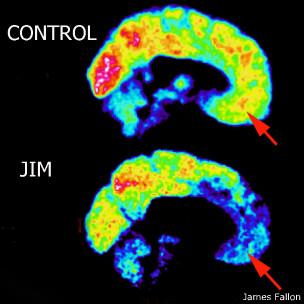 Imagem de exame do cérebro de Fallon em comparação a um exame de controle