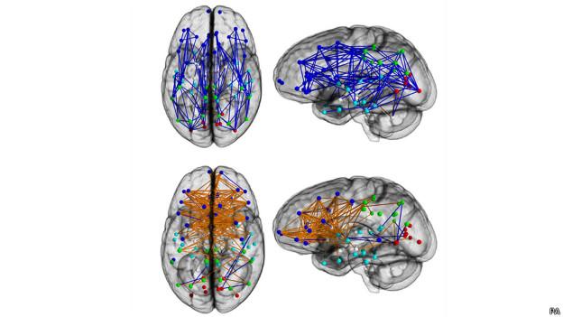 Cérebros masculino e feminino | Foto: PA