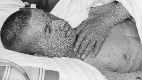 Enfermo de viruela