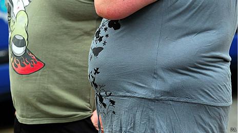 Imagen de persona obesa