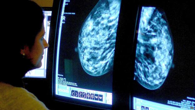 Câncer de mama | Crédito: PA