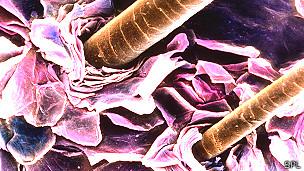 Pelos en el cuero cabelludo en una imagen tomada con un microscopio de electrones