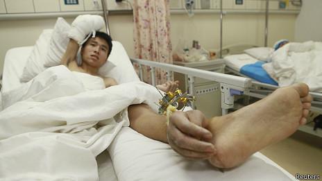Paciente chino con mano injertada en el tobillo.