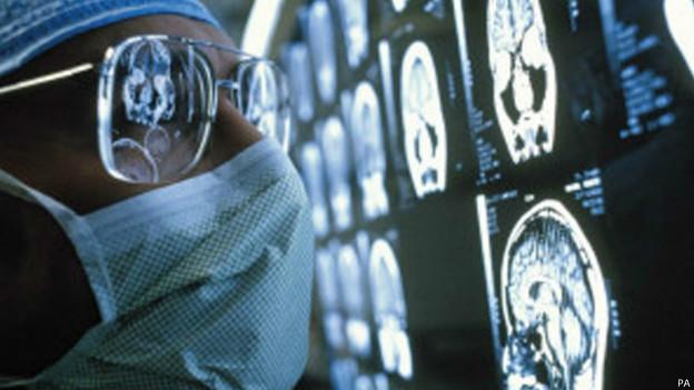 Cientista olha para exames de cérebro (foto: PA)
