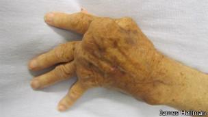 Mão de pessoa com artrite reumatoide (James Heilman/Wikimedia Commons)