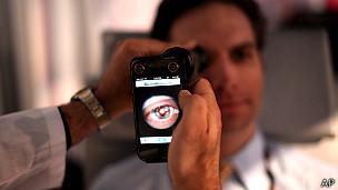App para examinar la vista