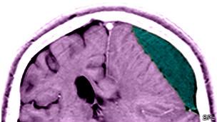 Escáner de un cerebro con una lesión cerebral.