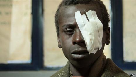 Niño con tracoma