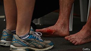 Persona con zapatillas y persona con pies heridos