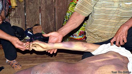 Nạn nhân với nhiều vết bầm tím trên cơ thể