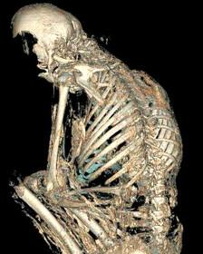 Reconstrucción del cráneo de la momia de una joven sudamericana