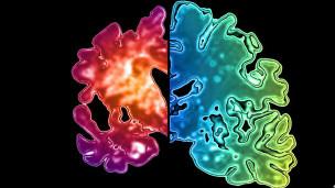 Doença de Alzheimer | Thinkstock