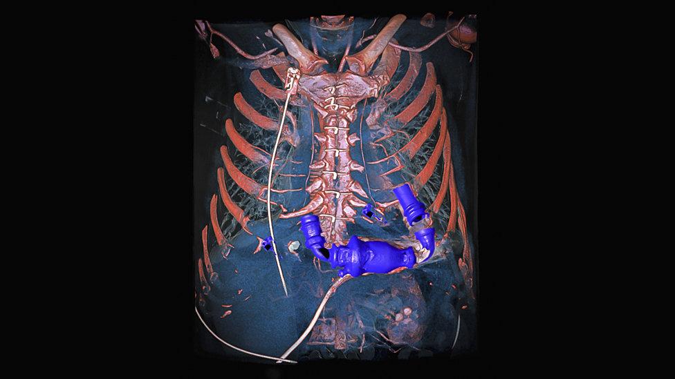искусственное сердце в грудной клетке