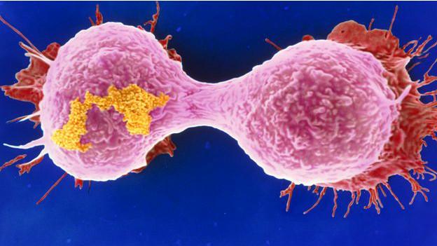 Escaner de cáncer de mama