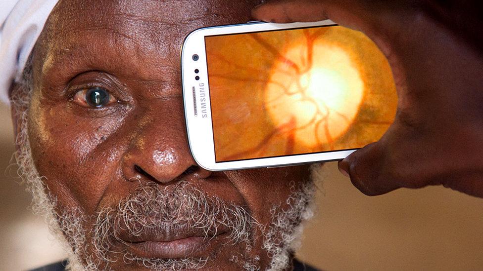 Приложение по исследованию сетчатки глаза компании Peek