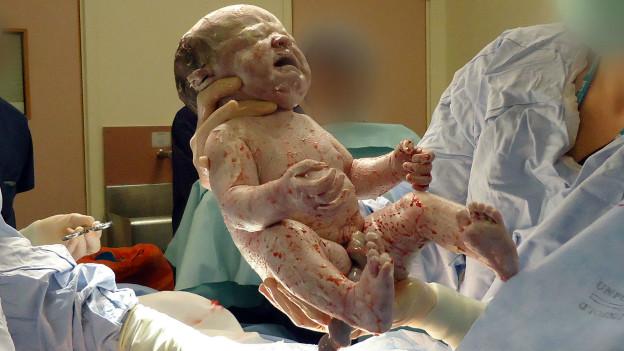 Bebê nascido por cesariana (BBC)
