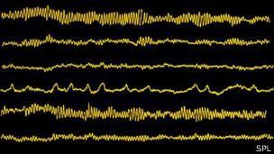 electroencefalografía
