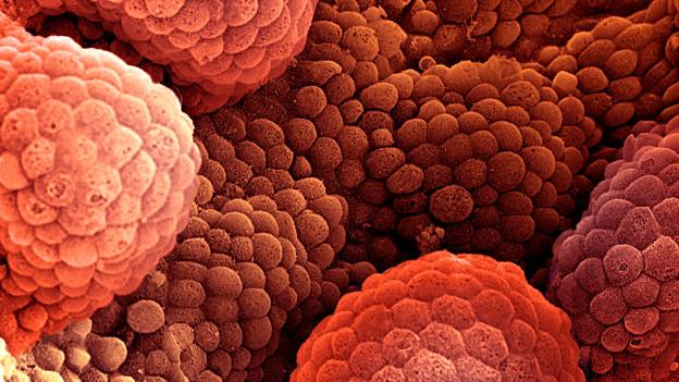 प्रॉस्टैट कैंसर की कोशिकाएं