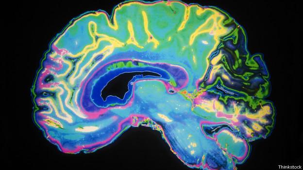 Scáner coloreado del cerebro