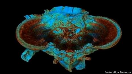 Imagen tomográfica de un insecto