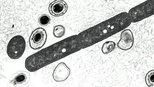 Células e esporos de antraz em estado vegetativo (AFP)