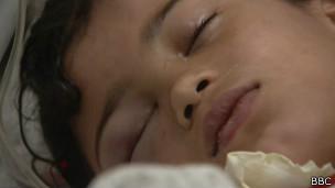 Criança palestina hospitalizada | Crédito: BBC