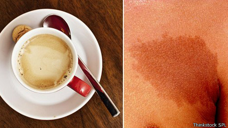 Manchas café con leche