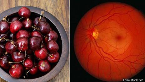 Cerezas y vasos sanguíneos del ojo