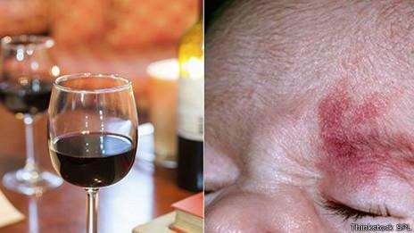 Las manchas de oporto son marcas inofensivas en la cara