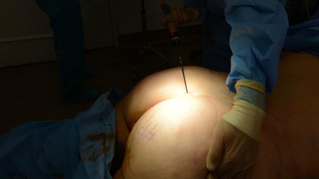 Trasero operación