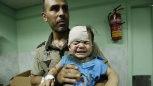 Criança ferida recebe atendimento. Crédito: AFP