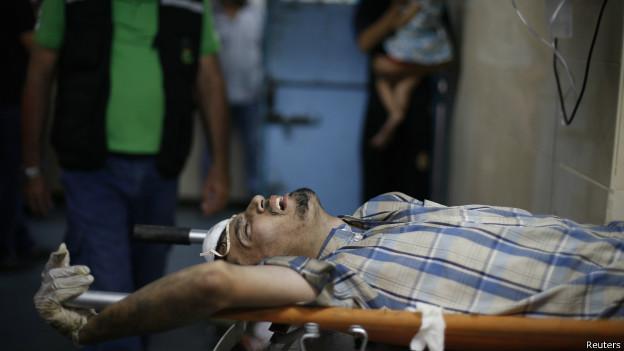 Palestino ferido em hospital em Gaza. Credito: Reuters